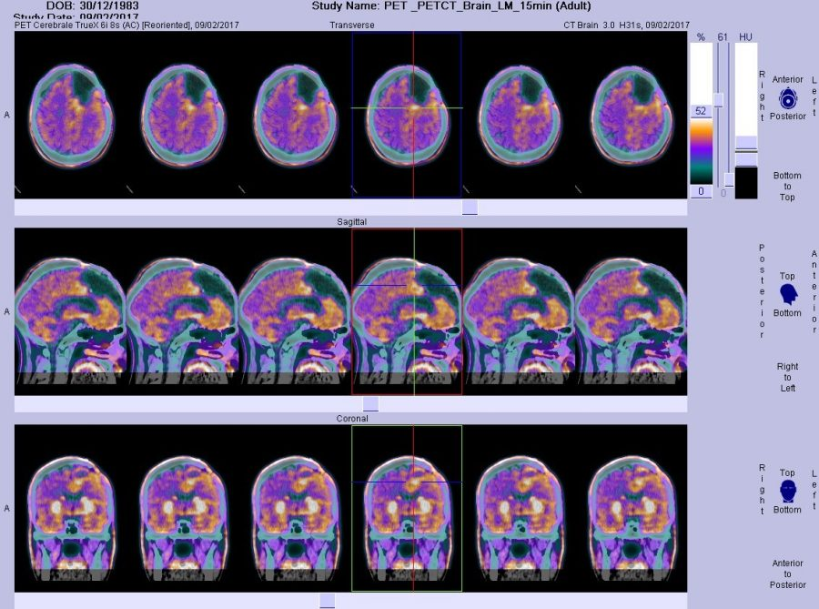 This is a PET scan of Glioblastoma cancer in a patient, the Zika virus could be a cure.