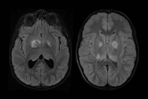 Pediatric Brain Cancer Awareness Month